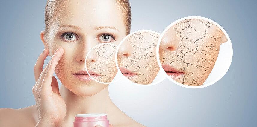 3 cách chăm sóc da khô căng mịn và ẩm mướt - Hoa Thiên Thảo