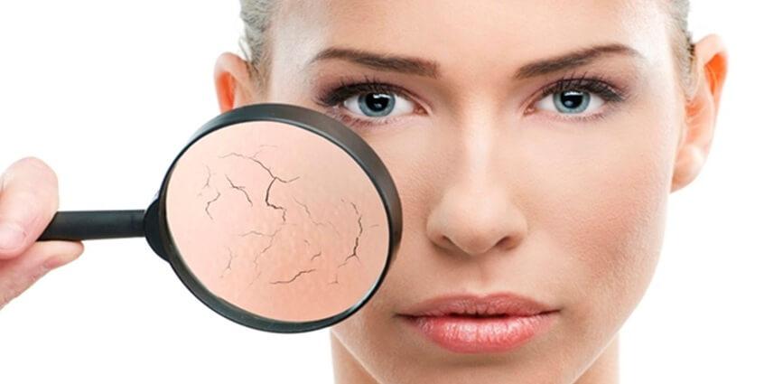 6 bước chăm sóc da khô buổi sáng không thể bỏ qua