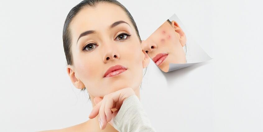 Bí quyết chăm sóc và làm sạch da mụn đúng cách