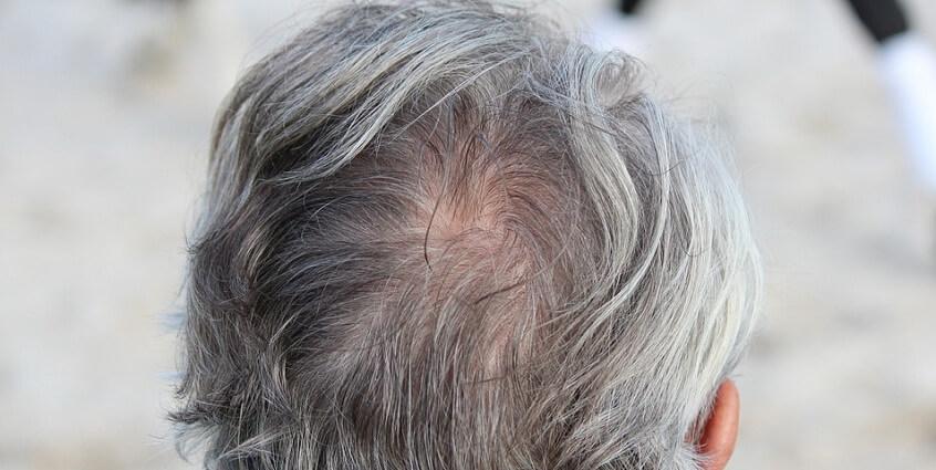 Cách trị tóc bạc hiệu quả nhất cho người cao tuổi
