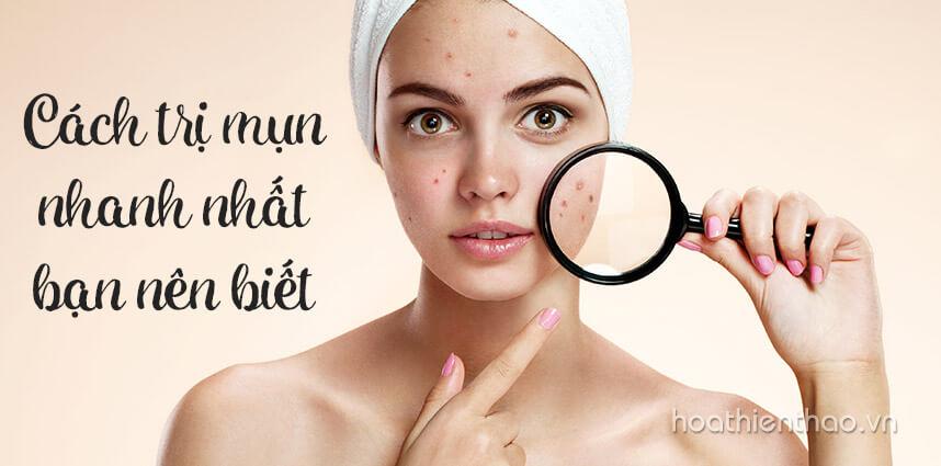 Cách trị mụn nhanh nhất bạn nên biết - Hoa Thien Thao Cosmetics