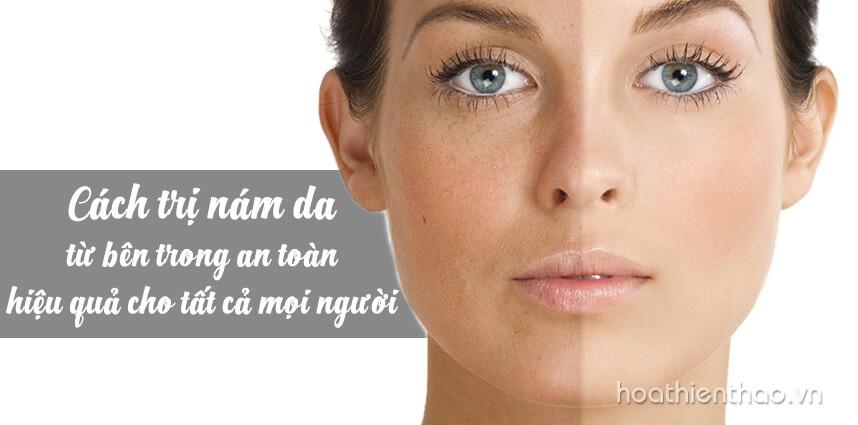 Cách trị nám da từ bên trong an toàn hiệu quả cho tất cả mọi người