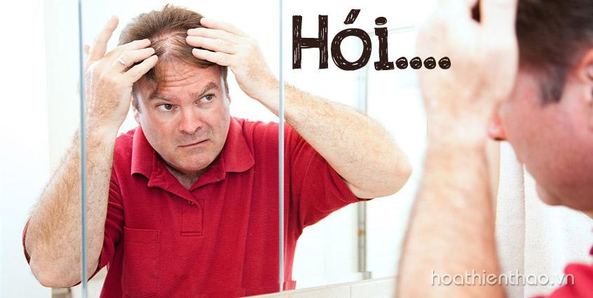 Nguy cơ hói đầu do rụng tóc ở nam giới