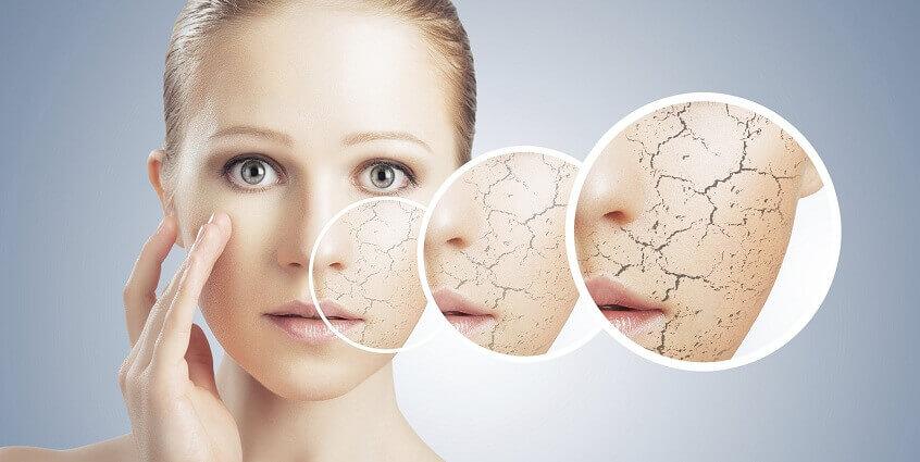Nguyên nhân và cách khắc phục làn da khô
