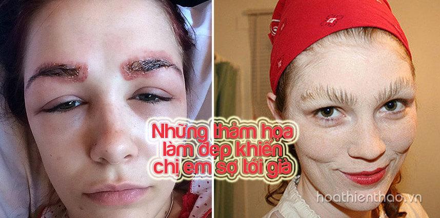 Những thảm họa làm đẹp khiến chị em sợ tới già - Hoa Thien Thao Cosmetics