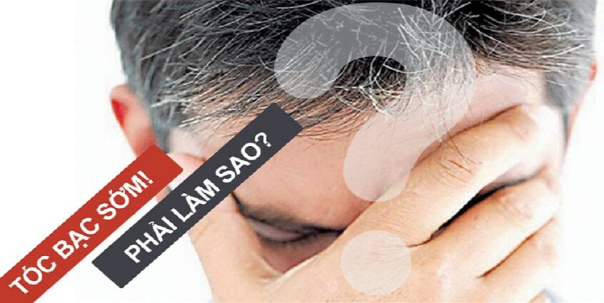 Tóc bạc sớm và giải pháp trị tóc bạc hiệu quả nhất