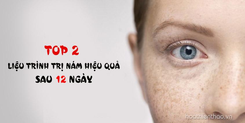 Top 2 liệu trình trị nám da, đồi mồi, tàn nhang hiệu quả chỉ sau 12 ngày