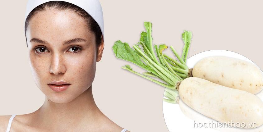 Trị nám hiệu quả với củ cải trắng