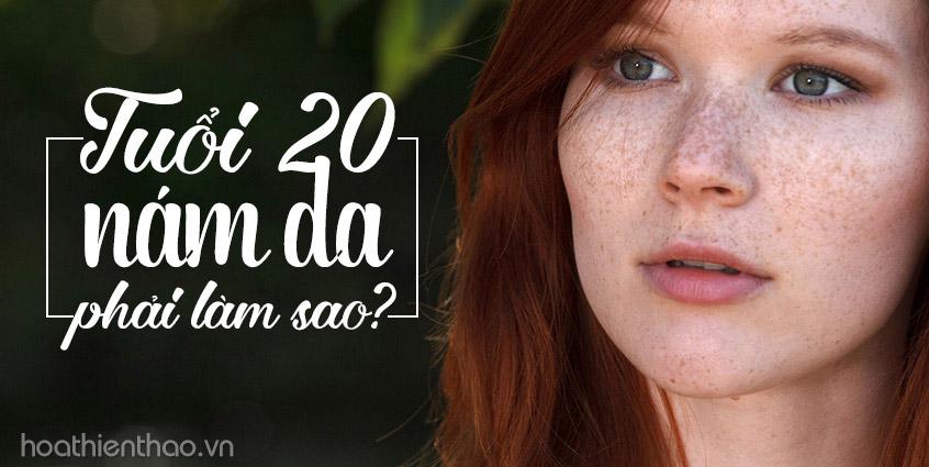 Tuổi 20 bị nám da phải làm sao?