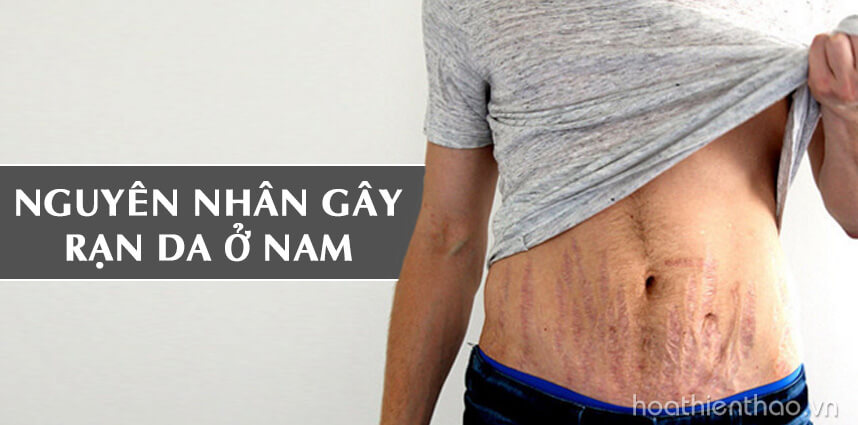 Nguyên nhân gây rạn da ở nam - Hoa Thien Thao Cosmetics