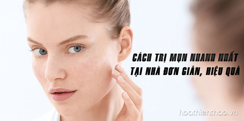 Cách trị mụn nhanh nhất tại nhà đơn giản, hiệu quả - Hoa Thien Thao Cosmetics