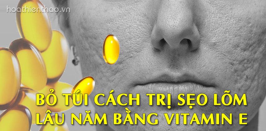 Cách trị sẹo lõm lâu năm bằng vitamin E - Hoa Thiên Thảo