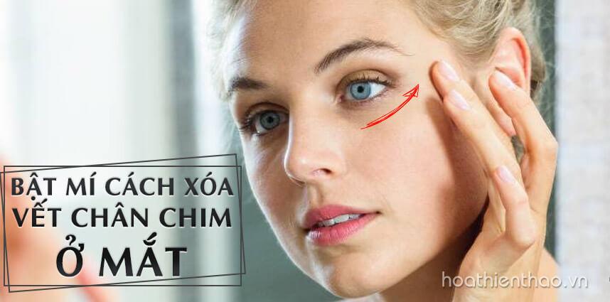 Cách xóa vết chân chim ở mắt hiệu quả - hoathienthaovn