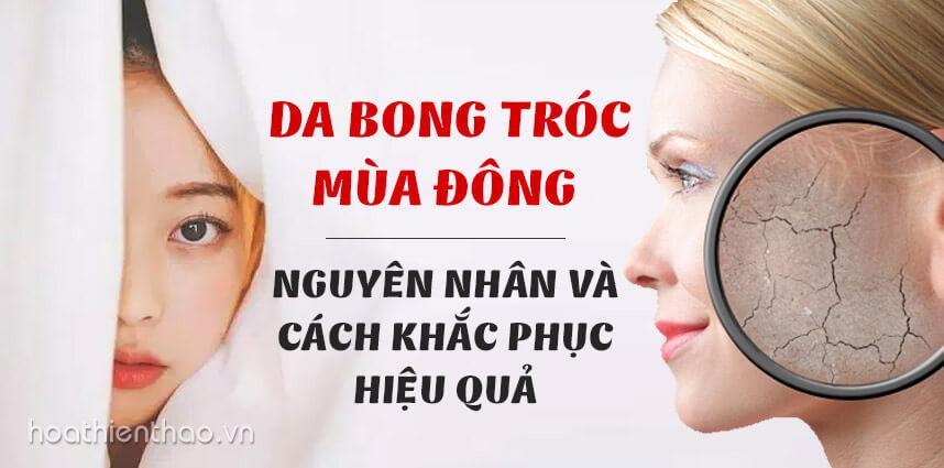 Da bong tróc mùa đông Nguyên nhân và cách khắc phục - Hoa Thien Thao Cosmetics