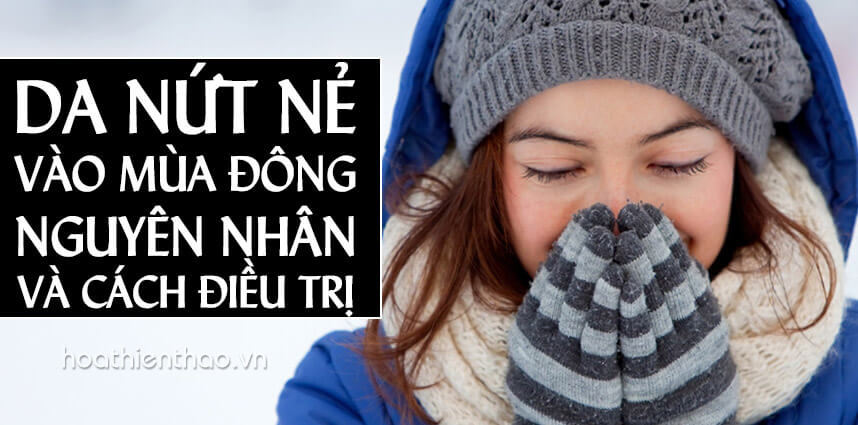 Da nứt nẻ vào mùa đông - Hoa Thien Thao Cosmetics