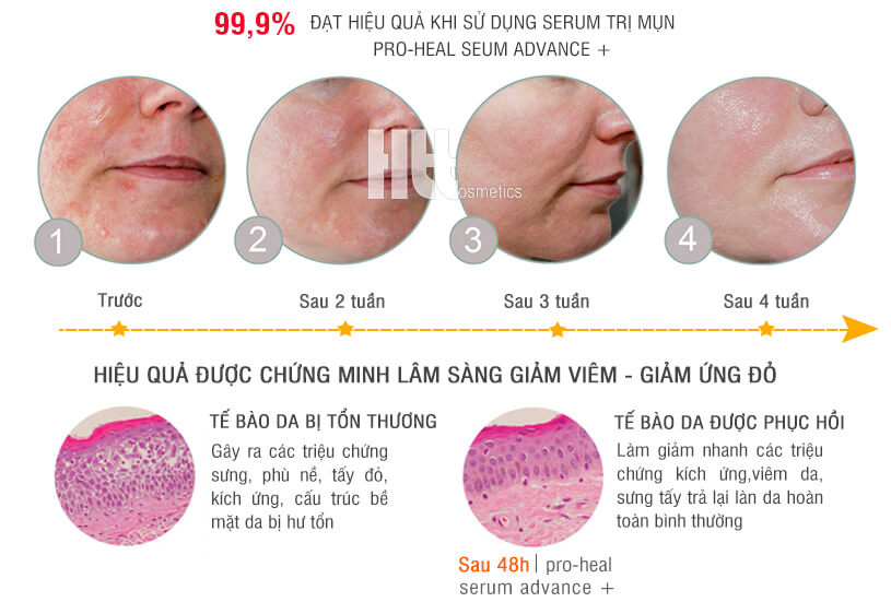 Serum trị mụn mủ iS Clinical Pro - Heal Advanced - Hoathienthao