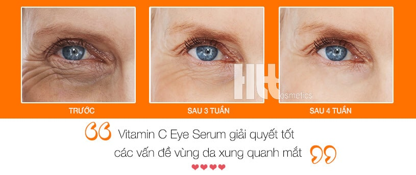 Serum trị thâm quầng mắt iS Clinical Vitamin C Eye Advance