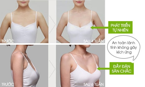Kem nở ngực Perfect Breast dạng xịt - HoaThienThao