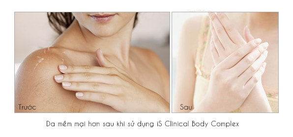 Sữa dưỡng thể iS Clinical Body Complex